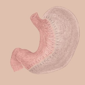 Vertical Sleeve Gastrectomy