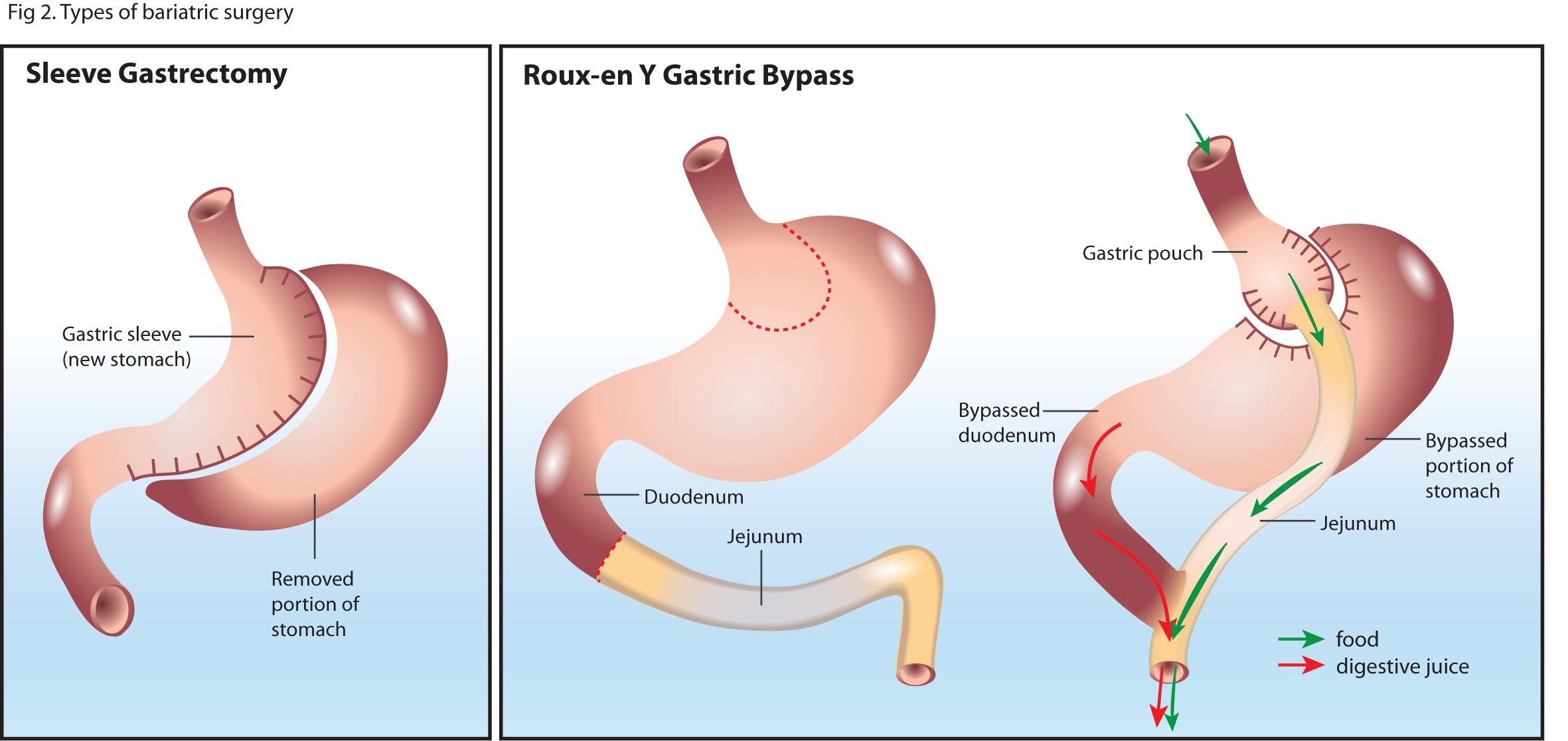 Types of gastric bypass surgery