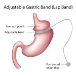 The Dangerous Bariatric Surgery Risks and the Way for Avoiding It