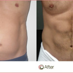 The Types of Liposuction Cost