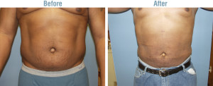 liposuction side effects