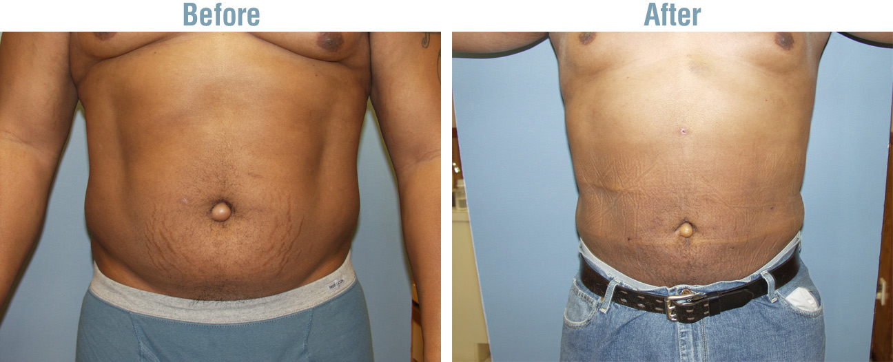Liposuction Side Effects Are Important Weight Loss Surgery