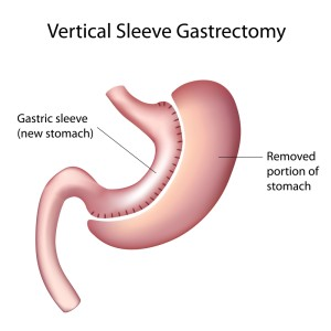 sleeve gastrectomy diet