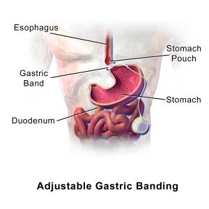 laparoscopic gastric banding