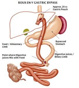 laparoscopic roux-en-y gastric bypass