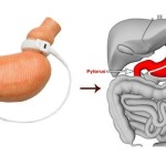 Laparoscopic Sleeve Gastrectomy Cost