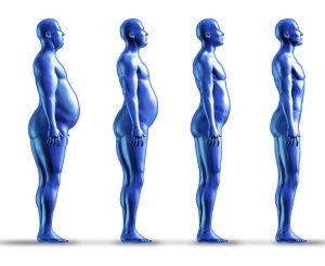 bmi for weight loss surgery