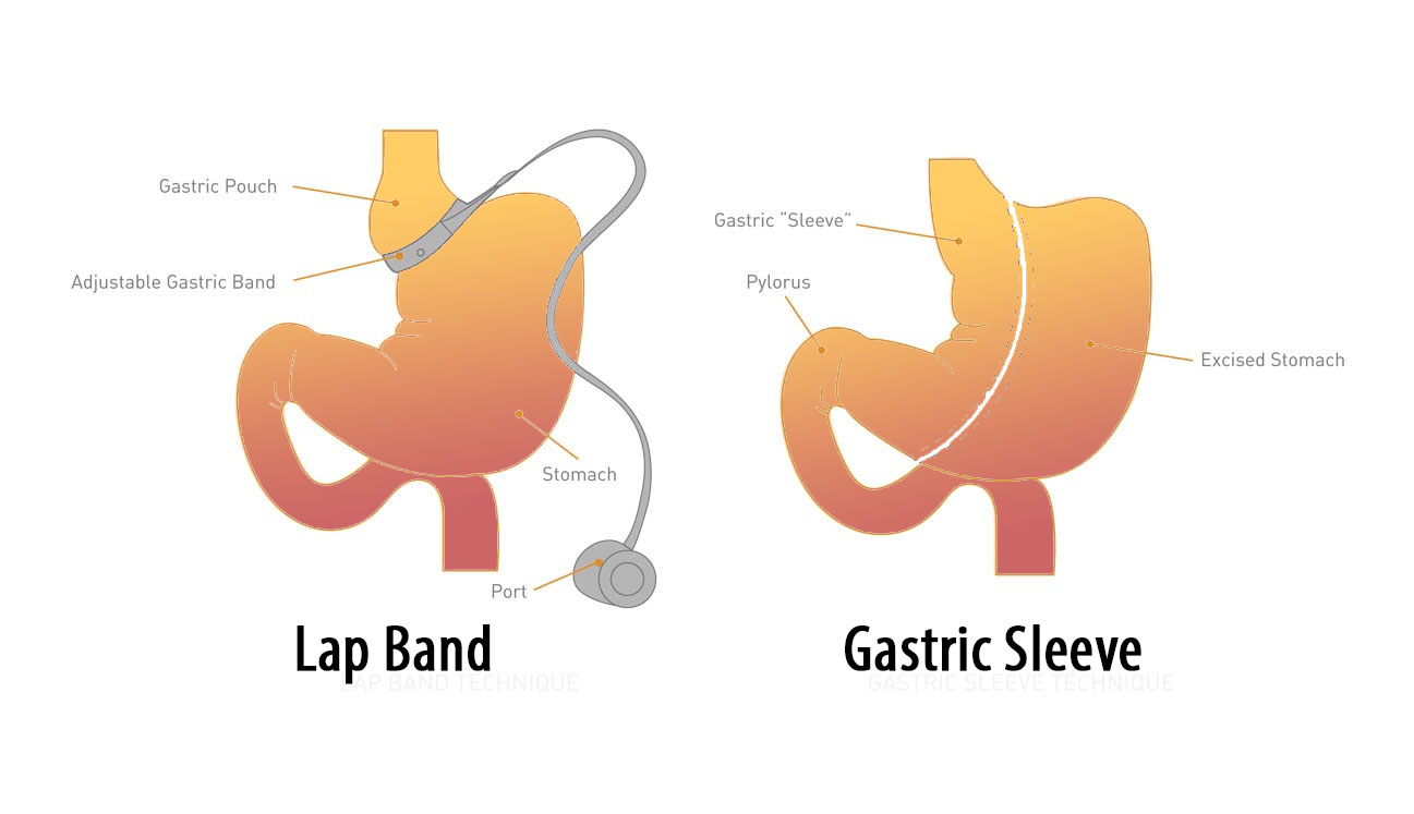 lap band conversion to gastric sleeve