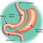 Roux En Y Gastric Bypass vs Sleeve Gastrectomy – Which One is Best for You?