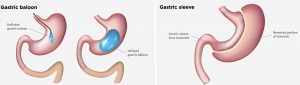 Gastric Sleeve And Gastric Balloon Abroad