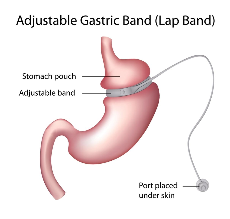 bariatric surgery risks