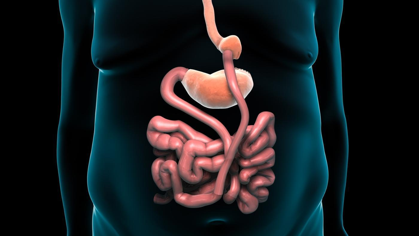 how long is recovery from gastric bypass