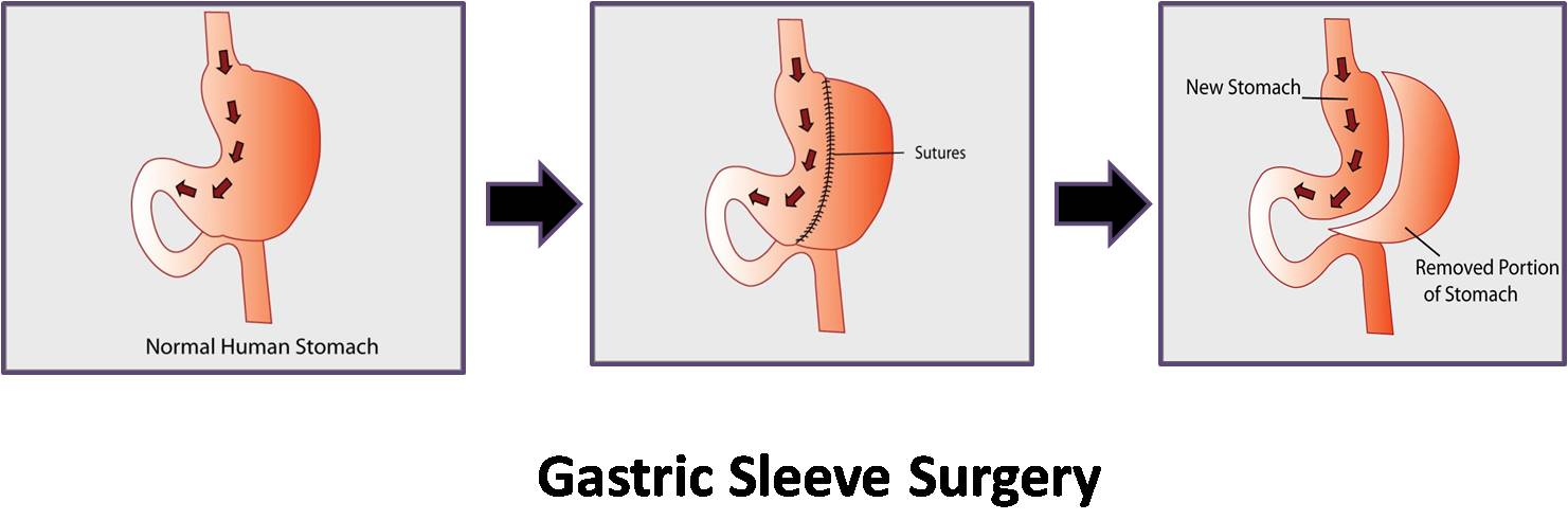 weight gain after gastric sleeve surgery
