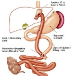 Laparoscopic Roux-En-Y Gastric Bypass: The Effective Weight Loss Surgery