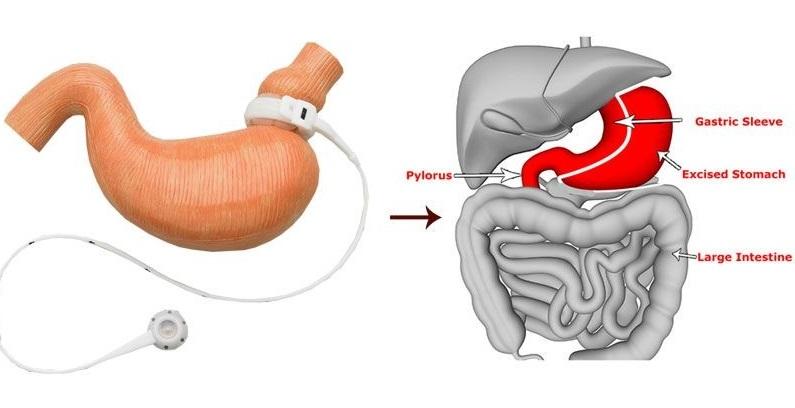 laparoscopic sleeve gastrectomy cost