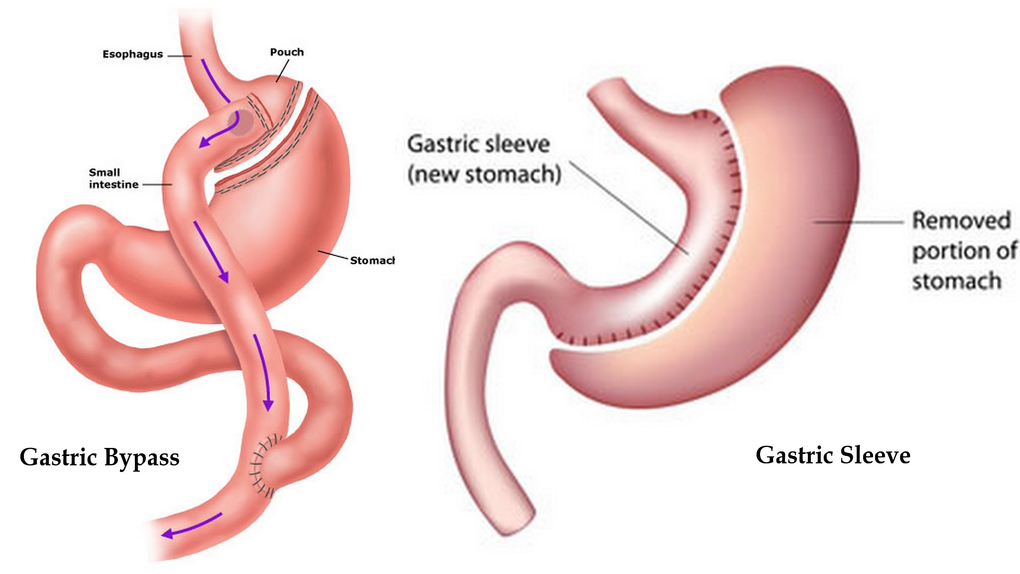 bariatric sleeve surgery diet