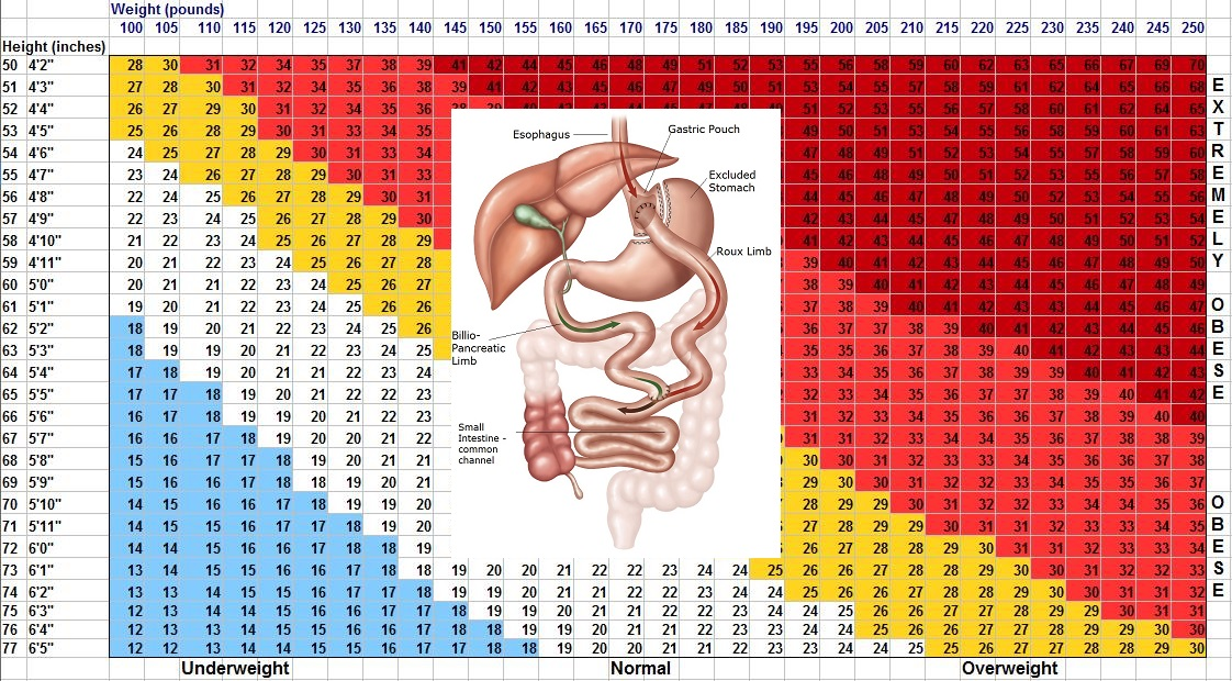 bmi for gastric bypass
