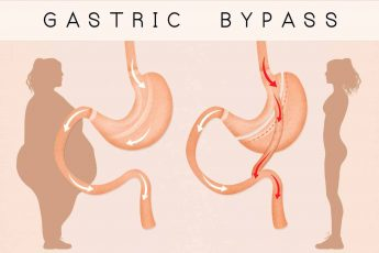 gastric bypass complications years later